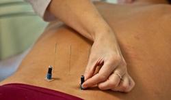 Klein effect acupunctuur bij chronische pijn