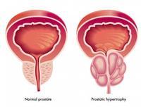 links: normale prostaat -  rechts: goedaardige prostaatvergroting