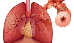 Wereld Astmadag: Kent u de 'verborgen' tekenen van astma?