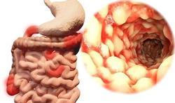 Test jezelf: Heb ik de ziekte van Crohn?