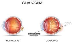 Kunt u glaucoom preventief laten opsporen?