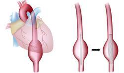 123-aneurysma-beh-stent-11-17.jpg