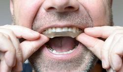 123-bijtplaat-bruxism-tandenknarsen-01-18.jpg