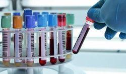 Niet-invasieve prenatale test (NIPT) om Downsyndroom (trisomie 21) op te sporen