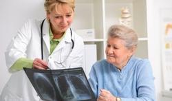 Preventie kankerscreening redt levens