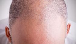 Stoppeltattoo tegen kaalheid : 17 vragen over Micro haar pigmentatie (MHP) of Tricopigmentatie