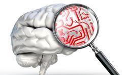 Hormoonverstorende stoffen nestelen zich in hersenen