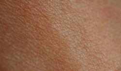 Test uw huidtype