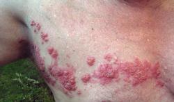 123-huidz-herpes-zoster-zona-gordelr-10-17.jpg