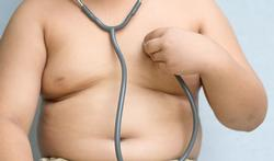 123-kind-obesitas-buik-stet--08-16.jpg