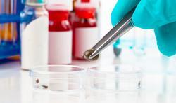 Kandidaten gezocht voor studie vaccin tegen ziekte van Lyme