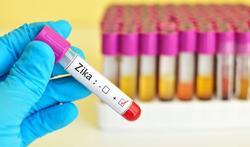 Strenger advies seksuele overdracht zikavirus