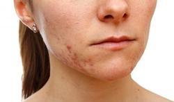 Kan voeding acne uitlokken of verergeren?
