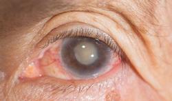 Hoe kunt u cataract voorkomen?