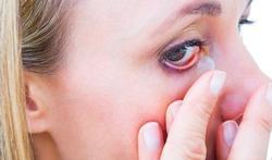 Dertien tips om uw contactlenzen schoon te houden