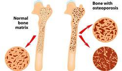 Wereld Osteoporosedag: Welke geneesmiddelen nemen bij botontkalking of osteoporose?