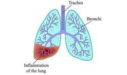 Boerenlong, duivenmelkerlong, tuinderlong: Extrinsieke Allergische Alveolitis