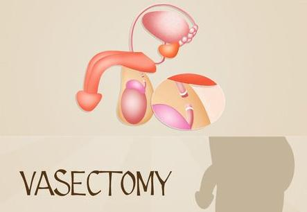 123-sterilis-man-vasectomie-full-11-16.jpg