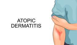 Helft van patiënten met atopische dermatitis heeft slechte levenskwaliteit
