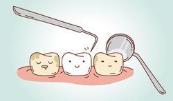 Het mondzorgtraject: betere terugbetaling bij regelmatig tandartsbezoek