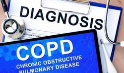 'Rokerslong'  (COPD)