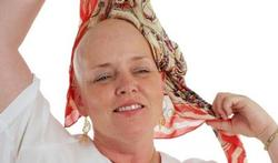 Hoofd koelen tijdens chemo behoudt haar