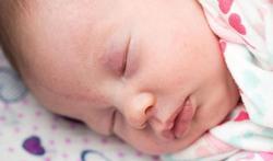 Moet u zich zorgen maken als uw baby een 'ooievaarsbeet' of 'engelenkus' heeft?
