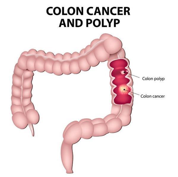 123m-colonkanker-poliep-voll-anatom-01-171.jpg