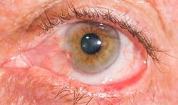 Entropion en ectropion: een naar binnen of naar buiten gedraaid onderste ooglid