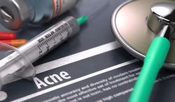 FDA stelt stricte regels voor acne-geneesmiddel
