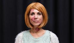 Nieuwe behandelingen kunnen patiënten met psoriasis aansporen tot bezoek bij dermatoloog