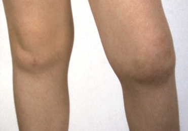 RA-syst-artritis-knie-kind.png