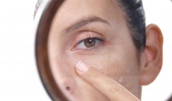 zwarte puntjes op neus verwijderen