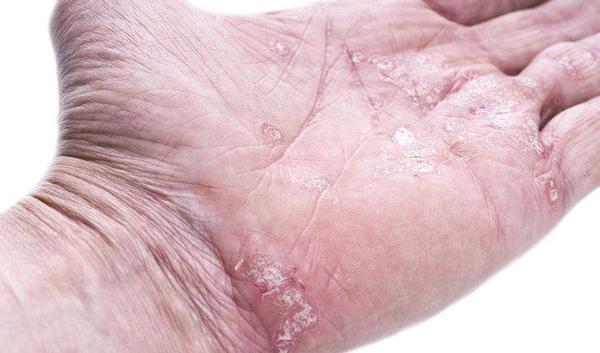 nieuws over psoriasis
