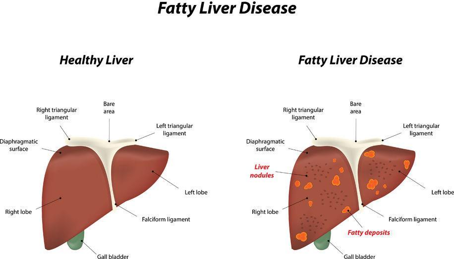 f-123-txt-tek-fatty-liver-nalf-leverziekten-oorz-sympt-01-18.jpg