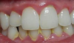 Tandvleesonsteking of gingivitis