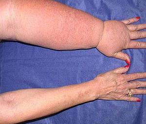 oedeem-arm-300.jpg