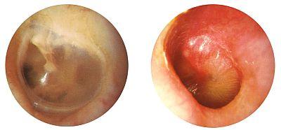 otitis-vs-oor-400.jpg