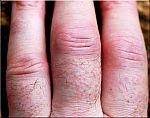 reumatoide-arthritis-handen-5-180.jpg