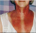 roodheid-na-radiotherapie.jpg