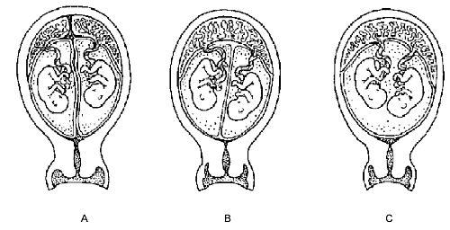soorten-tweeling-placenta.jpg