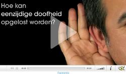 Video : Hoe kan eenzijdige doofheid opgelost worden?