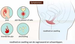 Video : Vaginale schimmelinfectie