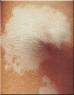 vitiligo-elleboog.jpg