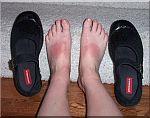 zonnebrand-voeten.jpg
