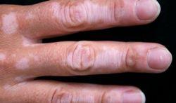 Vitiligo : les causes et les traitements