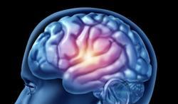 Cerveau : où se cache le bonheur ?