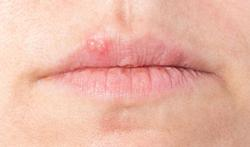 Bouton de fièvre : causes, symptômes, traitements