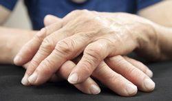 Polyarthrite rhumatoïde : quels symptômes ?