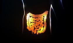 Maladie de Crohn : le double jeu des bactéries intestinales